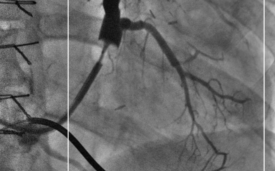 What is Interventional Cardiology?