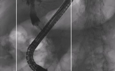 What is Interventional Fluoroscopy?